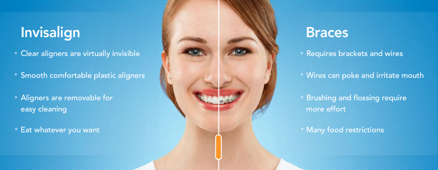 differences between invisalign and braces